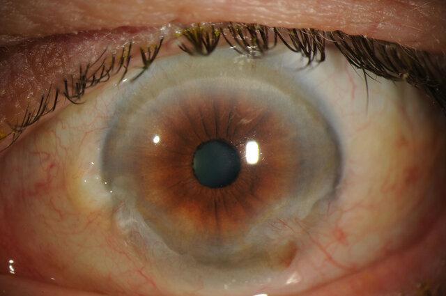 تشخیص بیماری چشمی ناشی از دیابت با هوش مصنوعی